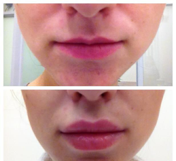 Увеличение губ в домашних условиях народными 48